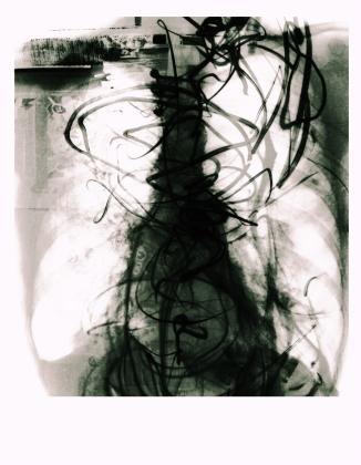 abdomen-ct7-bert-janssens-systemkaos